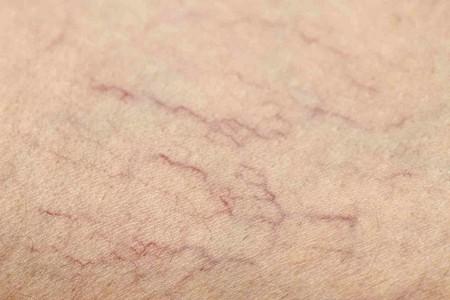 Почему набухают вены на ногах и болят. Почему опухла вена на ноге
